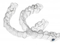 Unsichtbare Zahnspagen